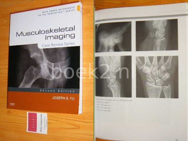 YU, JOSEPH S. - Musculoskeletal imaging - Second Edition (2008) - Case Review Series With cross-references to the requisites Series